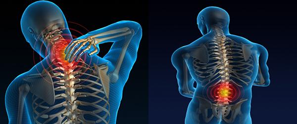 La osteocondrosis el tratamiento en el período agudo