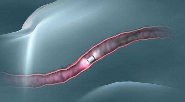 Nuevas píldoras con cámara mejoran los métodos tradicionales para examinar el interior del organismo