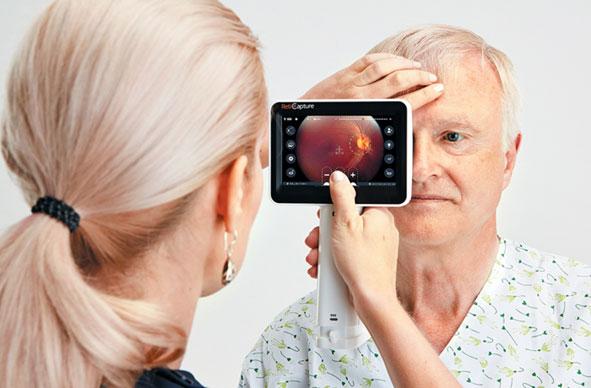 La exploración ocular puede detectar la enfermedad de Alzheimer en segundos